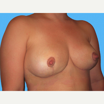 Breast Implant Removal after 3809820