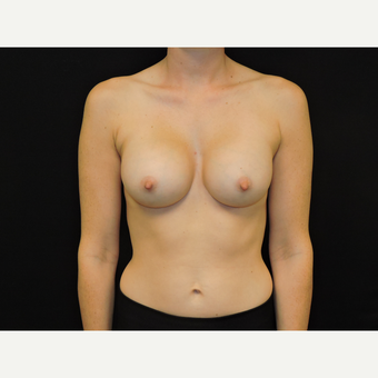35-44 year old woman treated with Breast Augmentation after 3331446