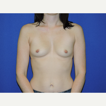 35-44 year old woman treated with Breast Augmentation before 3331446