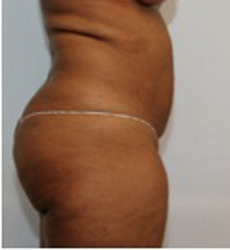 Abdominoplasty before 123631
