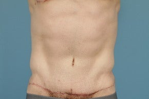Tummy Tuck (Abdominoplasty) after 1012661
