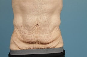 Tummy Tuck (Abdominoplasty) before 1012661