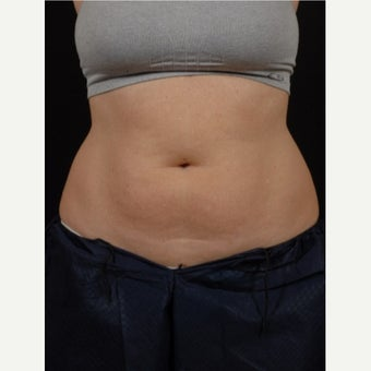 35-44 year old woman treated with CoolSculpting before 2476874