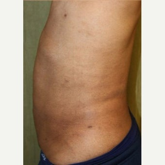 Liposuction Revision after 2132869