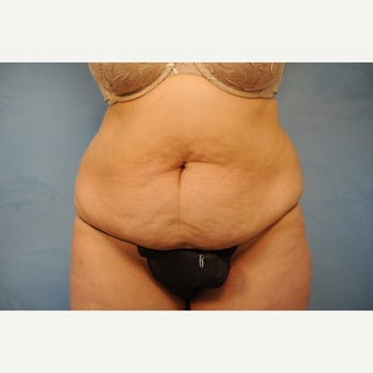 45-54 year old woman treated with Tummy Tuck before 2326025