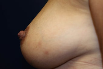 55 year old female treated for inverted left nipple 1087189