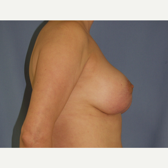 35-44 year old woman treated with Breast Lift after 3194288