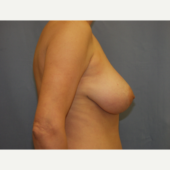 35-44 year old woman treated with Breast Lift before 3194288