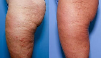 52 year old female treated for cellulite 929650