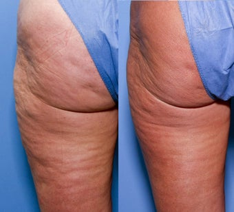52 year old female treated for cellulite after 929650