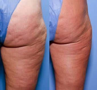 52 year old female treated for cellulite before 929650