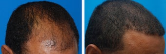 Hair Transplant Before & After - 46 Year-Old Male, 2600 Grafts, 20 Months Post Op after 910208