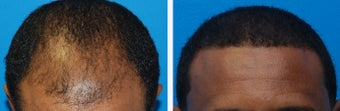 Hair Transplant Before & After - 46 Year-Old Male, 2600 Grafts, 20 Months Post Op before 910208