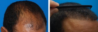 Hair Transplant Before & After - 46 Year-Old Male, 2600 Grafts, 20 Months Post Op 910208