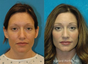 Lower Blepharoplasty before 1457379
