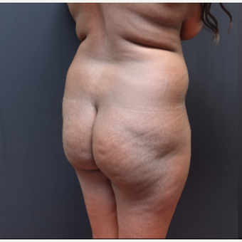 25-34 year old woman treated with Tumescent Liposuction before 3363769