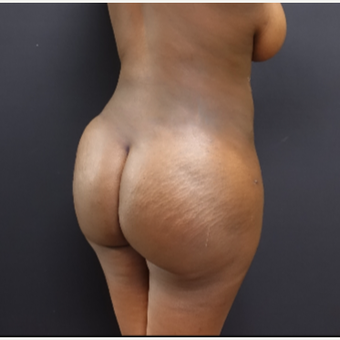 25-34 year old woman treated with Tumescent Liposuction after 3363769