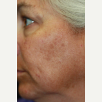 49 year old woman treated with Laser Peel