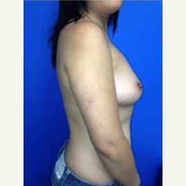 Breast Augmentation before 3744218