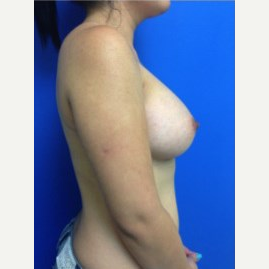 Breast Augmentation after 3744218