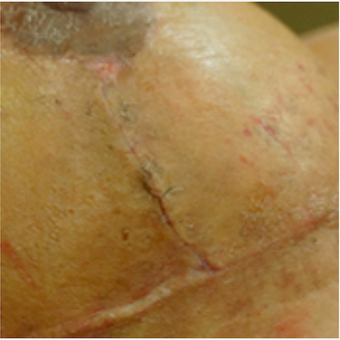 Breast Lift Scar Treated with embrace® before 2864562
