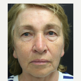 55-64 year old woman treated with SMAS Facelift before 3405699