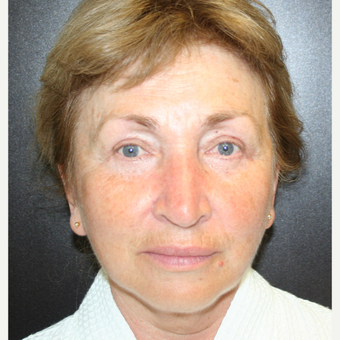 55-64 year old woman treated with SMAS Facelift after 3405699