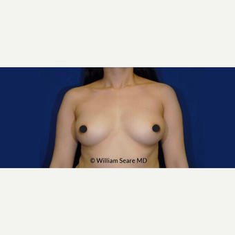 35-44 year old woman treated with Breast Fat Transfer before 3803020