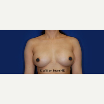 35-44 year old woman treated with Breast Fat Transfer after 3803020