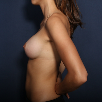 25-34 year old woman treated with Breast Augmentation (view 2 of 2) after 2976558