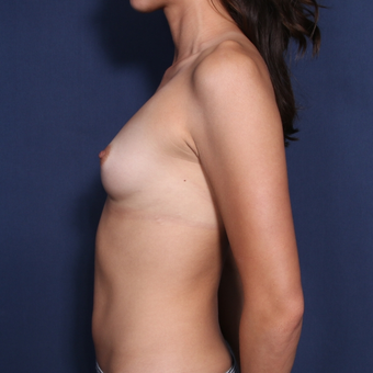 25-34 year old woman treated with Breast Augmentation (view 2 of 2) before 2976558