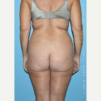 55-64 year old woman treated with Liposuction-hips/flanks (PAL) before 2482373