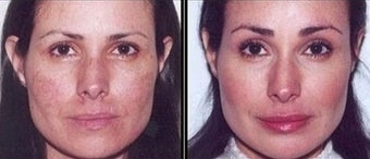 35-44 year old woman before and after browlift and facial fat grafting