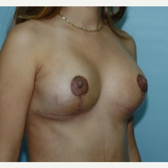 25-34 year old woman treated with Breast Lift 1848465