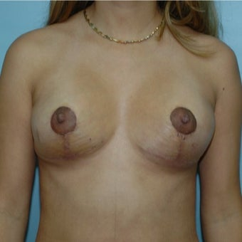 25-34 year old woman treated with Breast Lift after 1848465