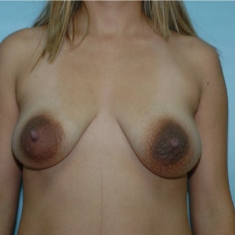 25-34 year old woman treated with Breast Lift before 1848465