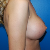 5'9 138lbs 460cc ultra high profile silicone breast implants after 3370932