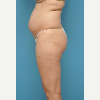 25-34 year old woman treated with Liposuction before 3810117