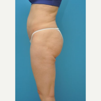 25-34 year old woman treated with Liposuction after 3810117