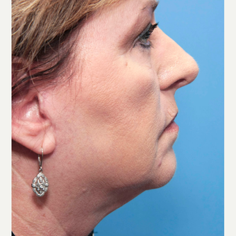 55-64 year old woman treated with INFINI for neck tightenting after 2766613