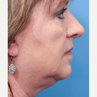 55-64 year old woman treated with INFINI for neck tightenting before 2766613