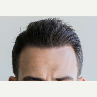 25-34 year old man treated with FUE Hair Transplant after 2749875