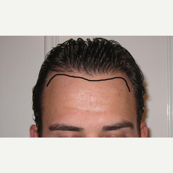 25-34 year old man treated with FUE Hair Transplant before 2749875
