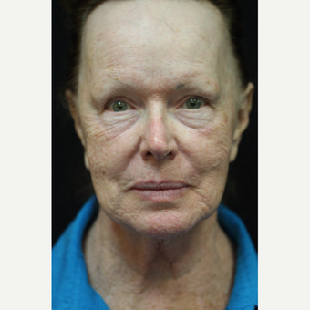 72 year old woman treated with Halo Laser before 2696380