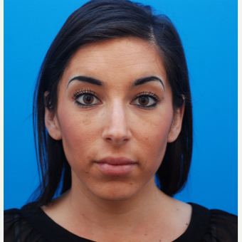 25-34 year old woman treated with Juvederm after 3287618