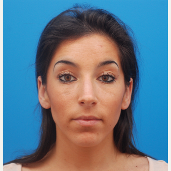 25-34 year old woman treated with Juvederm before 3287618