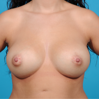 25-34 year old woman treated with Breast Augmentation after 3810843