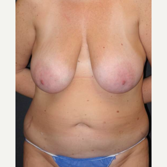 45-54 year old woman treated with Mommy Makeover before 3495829