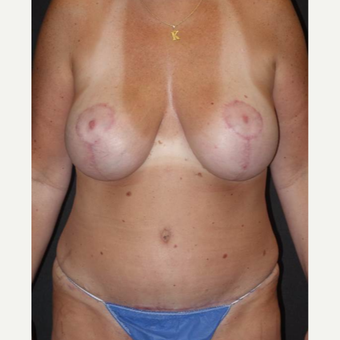 45-54 year old woman treated with Mommy Makeover after 3495829