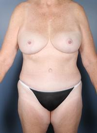 63 Year-Old After Weight Loss, Breast lift with implants, Breast Reduction, Tummy Tuck, etc. after 1394225